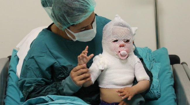 Türkiye'nin konuştuğu Beril bebek iyileşmeye başladı